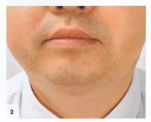 cryotherapie oval visage